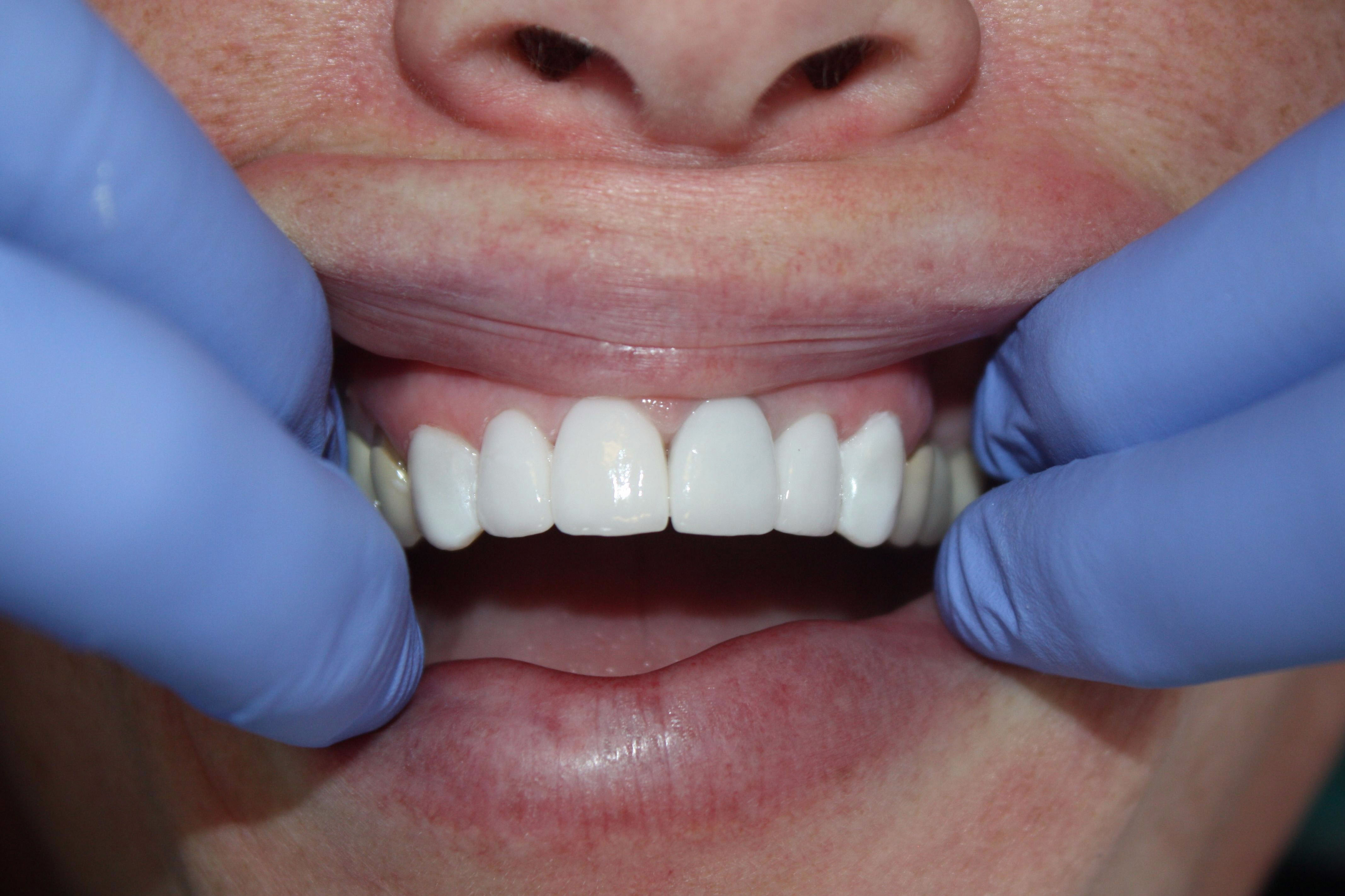 hampton roads dental care