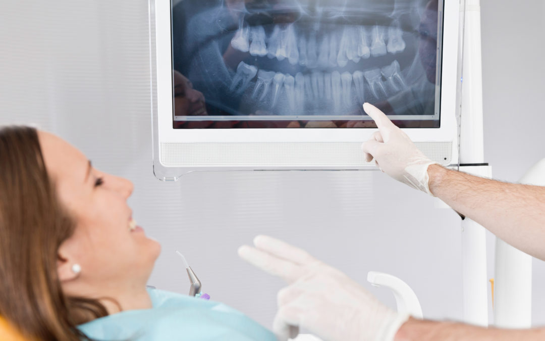 Uncovering the Truth About Dental X-Rays